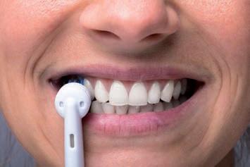 La cura dei denti diventa fai da te